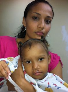 This is my first cleft lip baby on our mission today with her mom. We needed to fix her lip and nose.