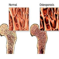 Natural Cure For Osteoporosis