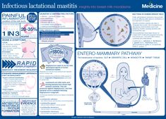 Infectious Lactational Mastitis: Insights Into Breast Milk Microbiome Microbiology, Health Care, Women's Health, Breastfeeding, Insight, Medicine, Milk