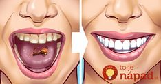 Tartar stains on your teeth can lead to several problematic issues resulting in weak teeth and even teeth loss in early age. Here are 10 helpful and proven natural remedies to get those ugly tartar stains removed from your teeth. Detox Drink Before Bed, Drinks Before Bed, Tartar Removal, Peau D'orange, Remover Manchas, Baking Soda Benefits, Fat Burning Detox Drinks, Natural Teeth Whitening, Detox Drinks