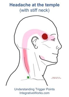 referral - trapezius - upper - clavicular: trigger point headache means pain in temple Chronic Migraines, Chronic Pain, Chronic Illness, Headache Map, Headache Location Meaning, Trigger Point Therapy, Massage, Physical Therapy, Fibromyalgia