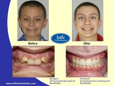 Noah Orthodontics, Portsmouth, King Charles, Photos, Pictures, Cake Smash Pictures