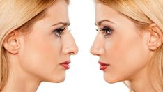 Nose reshaping is also called as 'Rhinoplasty'. In common words we call it as 'Nose Job'; is an operation to change the shape of your nose. There are many reasons due to which an individual may have nose reshaping surgeries. Rhinoplasty Surgery, Nose Surgery, Bad Nose Jobs, Nose Reshaping, Rhinoplasty Before And After, Cosmetic Procedures, Hair Transplant, Jawline, Trends