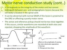 1000 Ideas About Nerve Conduction Study On Pinterest