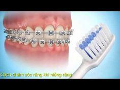 Tổng hợp những video về dịch vụ niềng răng thẩm mỹ như Review về công nghệ niềng răng, Quá trình thực hiện niềng răng, quy trình niềng răng , kết quả niềng r...