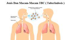 Jenis Dan Macam-Macam TBC ( Tuberkulosis ) - TBC paru ( pulmonary tuberculosis ), tbc plerisy, tbc pneumonia, tbc kavitas, tbc pericarditis, tbc meningitis, tbc kelenjar, tbc tulang dan jenis tbc lainnya. Info lebih lengkap dapat Anda baca pada link berikut ini, klik http://www.ahlinyaobatherbal.com/jenis-dan-macam-macam-tbc-tuberkulosis/