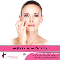 Don't let #uglywarts and moles stain your beauty, remove them in  safe way through theNewyou's Wart and #MoleRemovalSurgery.