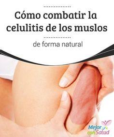 Cómo combatir la celulitis de los muslos de forma natural  La celulitis es un problema estético muy habitual que afecta a más del 90% de las mujeres en todo el mundo. A menudo se forma en los muslos, pero también puede darse en los glúteos, el abdomen y los brazos.