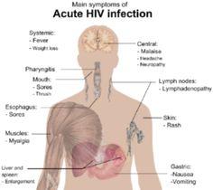 symptoms for hiv