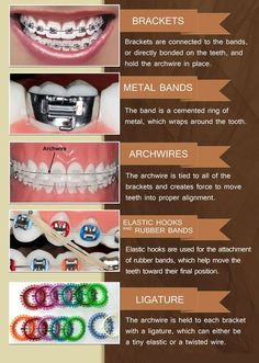 Arbour Dental Clinic in Winchester, Hampshire - We provide high quality Dental Care Treatments and well experienced Dentist in Southampton, London Types Of Braces, Braces Tips, Braces Bands, Dental Braces, Teeth Braces, Braces Food, Dental Care, Braces Smile, Dental Implants