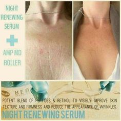 Look at the difference in this before and after! Her skin is glowing, smooth, and less red all from using the AMP MD roller and Night Renewing Serum. Are you ready for great skin?