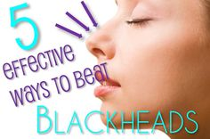 Effective ways to beat blackheads  {Personally don't recommend the blackhead tool because it can cause scarring if you're not careful (from experience), but everything else sounds great. I will be trying these.}