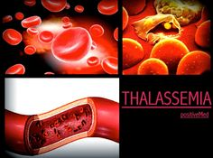 How to and What to Blog: Some Facts about Beta Thalassemia
