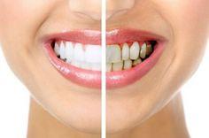 Cómo eliminar la gingivitis con remedios caseros  #salud #spoots