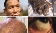Αυτές είναι οι 10 πιο Τρομακτικές Ασθένειες στον κόσμο, που κανένας γιατρός δεν θέλει να αντιμετωπίσει!
