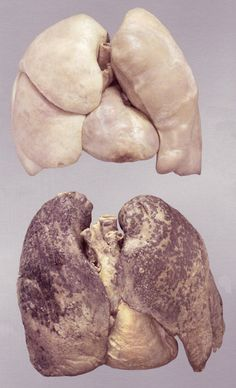 Healthy lungs (top) and smoker's lungs (bottom)