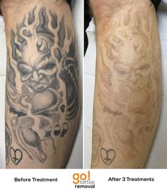 1077 Best Tattoo Removal In Progress Images In 2019 Grey Wash