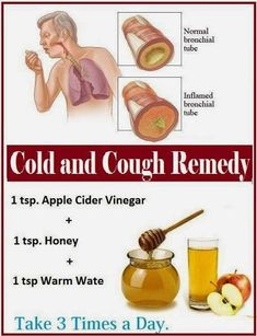 Home remedies for dry cough health натуральные продукты, здоровье, советы. Cold And Cough Remedies, Home Remedy For Cough, Cold Home Remedies, Natural Health Remedies, Herbal Remedies, Health And Beauty Tips, Health Tips, Fitness Motivation, Natural Treatments
