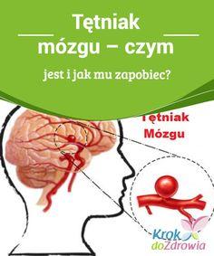 Tętniak mózgu - czym jest i jak mu zapobiec? Health, Fitness, Health Care, Salud