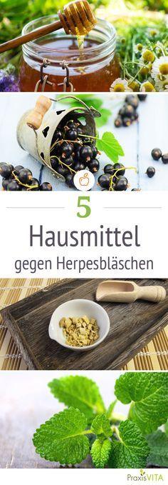 Honig, Knoblauch, Franzbranntwein helfen gegen Herpes.