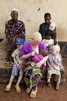 Albino African mother and child. African Culture, African History, Tanzania, Black Is Beautiful, Beautiful People, Art Africain, Black History Facts, African Beauty, Mother And Child