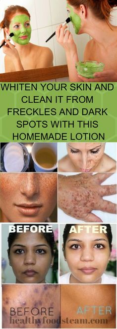 WHITEN YOUR SKIN AND CLEAN IT FROM FRECKLES AND DARK SPOTS WITH THIS HOMEMADE LOTION