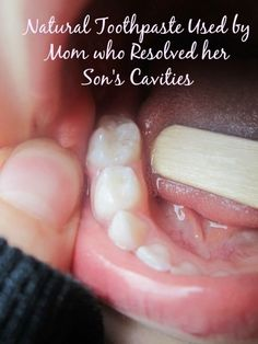 The natural toothpaste recommended to assist with the remineralization process of healing cavities.