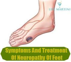 Causes, Symptoms And Treatment Of Neuropathy Of Feet