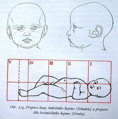Infant anatomy