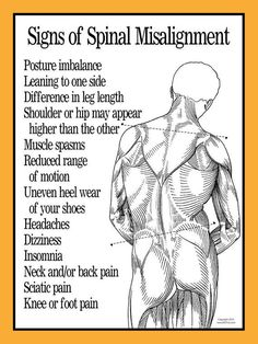 Signs of Spinal Misalignment Poster 18 X 24 by APrints on Etsy Chiropractic Benefits, Chiropractic Quotes, Home Remedies For Snoring, Sleep Apnea Remedies, Muscle Stretches, Back Pain Exercises, Psoas Muscle, Muscle Spasms, Neck And Back Pain