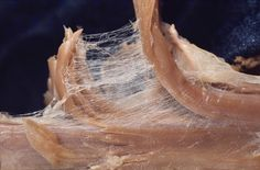 Fascia surrounding a muscle