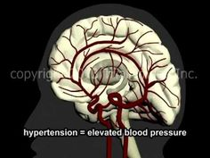 What Is A Stroke? - Narration and Animation by Cal Shipley, M.D. - YouTube