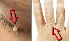 Warts are unsightly changes to the skin caused by the human papiloma virus (HPV), which consists of over 100 different types. Each type of HPV affects everyone differently, depending on the strength of the immune Vitiligo Treatment, Hpv, Skin Tag, Tattoo Removal, Tips Belleza, Natural Cures, Home Remedies, Health Tips, Beauty Tips
