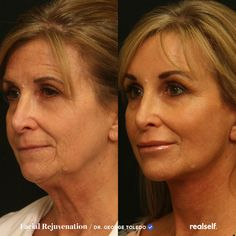 Facial Fillers, Botox Fillers, Fillers For Face, Dermal Fillers, Face Plastic Surgery, Mini Face Lift, Cabinet Medical, Neck Lift, Operation