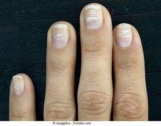 Macchie sulle unghie di mani e piedi, bianche o nereFisioterapia Rubiera, dolore, sintomi e terapia