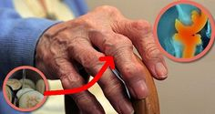Home Remedies for Arthritis & Joint Pain - Everyday Remedy Healthy Drinks, Healthy Tips, Stay Healthy, Healthy Foods, Healthy Eating, Planning Sportif, Home Remedies, Natural Remedies, Ginger Water