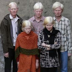 Aşağıdaki fotoğrafların ayrıntısını vermeden önce açıklamasını yapmakta fayda var. Ten rengi insanı ırklara ayırmak için kullandığımız göstergelerden biridir. Ancak ne kadar yanlış bir kanaat olduğunu göreceksiniz.   Bu ailenin Finlandiyalı olmadığını iddia etmek güç ama onlar Hint.   İngiltere'deki en büyük albino aile. Onlar da Pakistan kökenli 16 kişilik bir aile.   #albino #ırk