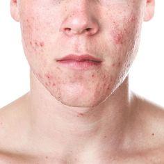 A acne é um mal que assombra adolescentes e também muitas pessoas que já chegaram a fase adulta. Além da má aparência, esse problema também pode deixar marcas para a vida toda! Uma das alternativas para tratar tanto a acne ativa como marcas, manchas e cicatrizes remanescentes é o peeling químico. Esse procedimento causa lesões controladas das camadas da pele, que causará esfoliação seguida de regeneração, o que proporciona a pele do rosto uma aparência mais saudável e bonita.
