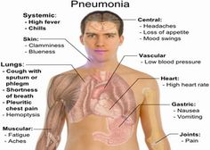 pneumonia - : Yahoo Image Search Results