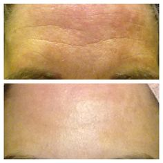Raelyn's Real Results after 30 days of Nerium!  www.stefaniegass.arealbreakthrough.com or http://www.facebook.com/wrinkleproofyourskin  Ask me for a FREE six night sample!