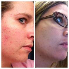 UNBLEMISH regimen.... great for #acne... 60 day money-back guarantee!
