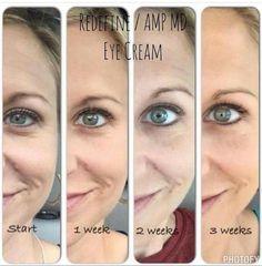 Wow. Rodan + Fields Multi-function Eye Cream... it works! It's guaranteed!! Order yours at christyc.myrandf.com! #beautifulskinisin #eyecream #EyeCrack