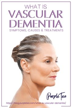 vascular dementia can be caused by stroke, heart disease, diabetes, or even thyroid issues! What is Vascular Dementia? Vascular Dementia Symptoms, Stages Of Dementia, Alzheimer's And Dementia, Alzheimer's Symptoms, Vascular Dementia Treatment, Dementia Quotes, Wellness