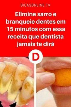 Eliminar sarro dental | Elimine sarro e branqueie dentes em 15 minutos com essa receita que dentista jamais te dirá