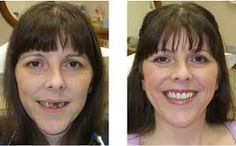 A revolutionary procedure of Dental implant in West London has also become a great hit. If you have a missing or decayed tooth replacing it with implant surgery thus stands as a great idea to mull over. http://rupartm.wordpress.com/2013/11/14/consult-a-dental-professional-for-dental-implants/