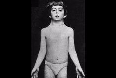 Ullrich-Turner-Syndrom - 45,X