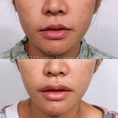 Lip Corner Lift is the secret of the youthful appearance♡ MVP Plastic Surgery's lip lift enhance the balance, proportion and/or shape of the lips. To enhance 'red lip show' at the sides of the lips. to minimize the appearance of the 'down turned mouth'. ♡above patient had upper lip lift with previous lip scar revision Lip Surgery, Eyebrow Lift, Beauty Expo, Korean Brands, Surgery Center, Business Hairstyles, Before After Photo, Upper Lip, Rhinoplasty