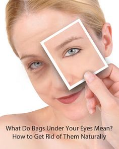 If you're dealing with dark circles under your eyes, keep reading to learn about their cause and how to get rid of them.