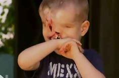 A Little Boy Born With No Eyes, Nose, Or Upper Jaw Was Just Given A Life-Changing Surgery