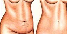 Receitas para eliminar gordura e regularizar o intestino são bastante solicitadas pelos nossos leitores.Nós já publicamos algumas excelentes.E a de hoje também é muito boa.É uma receita simples, com apenas três ingredientes.